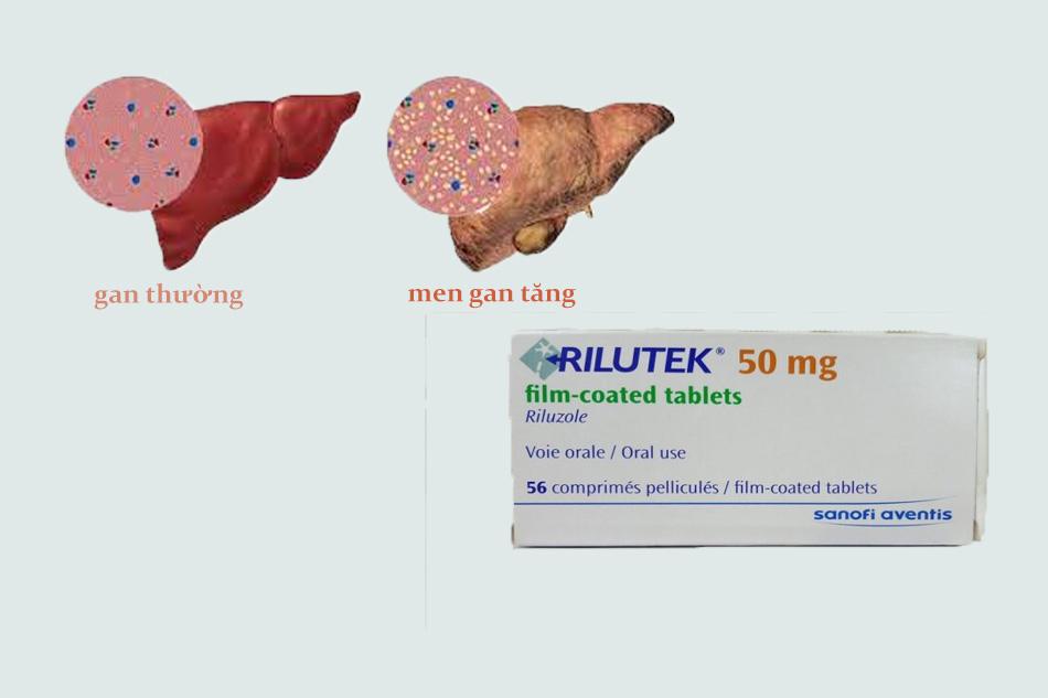 Tác dụng phụ của thuốc Rilutek 50mg